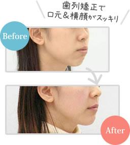 歯列矯正で口元&横顔がスッキリ インビザラインBefore After